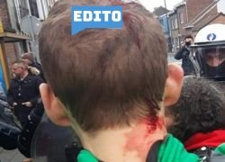 Edito: Manif-antifasciste et violences policières: disproportion